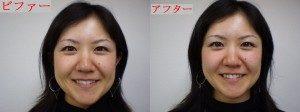 尼崎カイロ整体院の小顔矯正