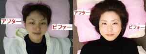 尼崎カイロ整体院の小顔矯正・美顔矯正